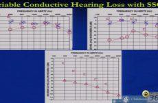 Aula do 47° | Dr. Dennis Poe | Diagnosis e Management of Semicircular Canal Dehiscence
