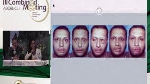 Aula do 3º Combined | Dr. Álvaro Muños Andrade | Manejo atual das Paralisias Faciais Idiopática