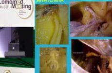 Aula do 3º Combined | Dr. Jose Ricardo Testa | Limites anatômicos do acesso fossa média