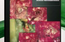 Aula do 3º Combined | Dr. Rubens de Brito | Transcoclear nas cirurgias do Forame Juguiar