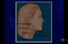 Aula do 47º | Dr. José Juan Brachinni | Tratamento do Pescoço sem Ritidoplastia
